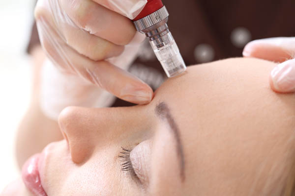 Microneedling - B.N.C | Be-Natural Concept